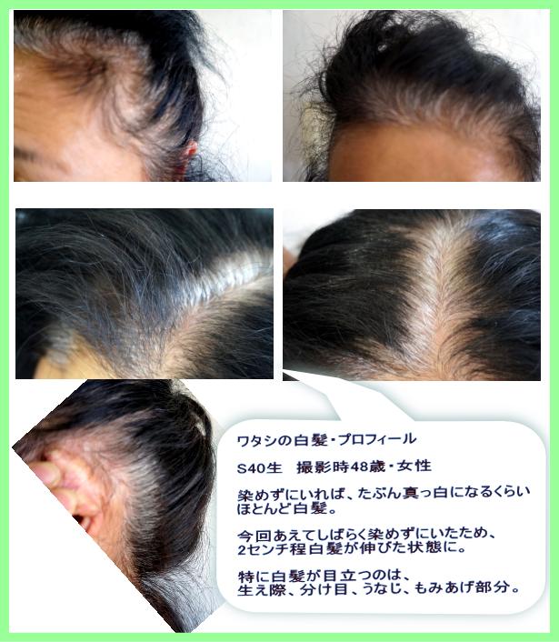 白髪の状態