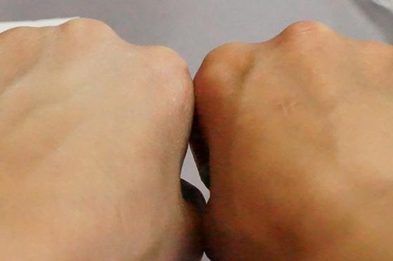 手の甲の違い