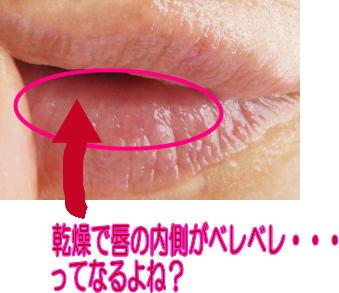 唇の内側の乾燥