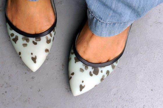 甲の靴ずれ