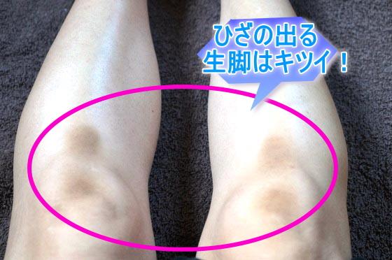 ひざの黒ずみ