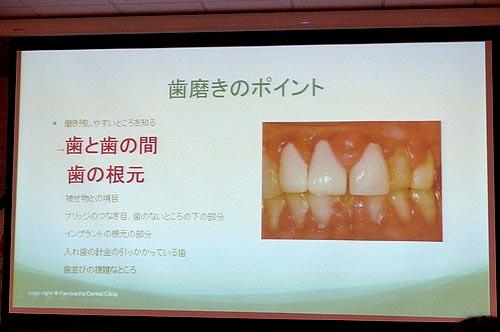 歯と歯の境目