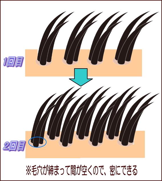 植毛で毛を密にする