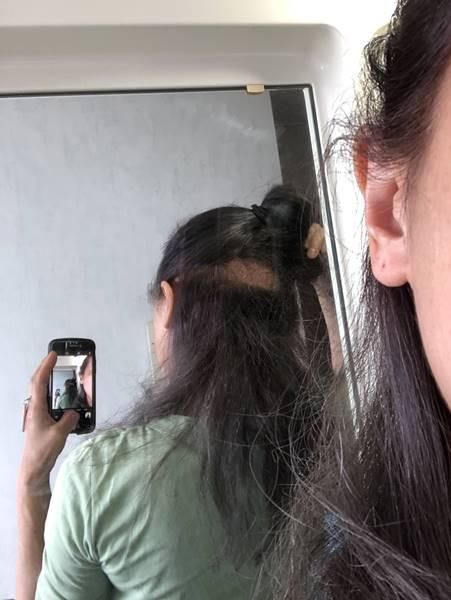 後頭部のハゲ