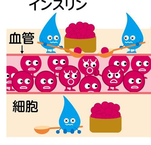 糖尿病のイメージ