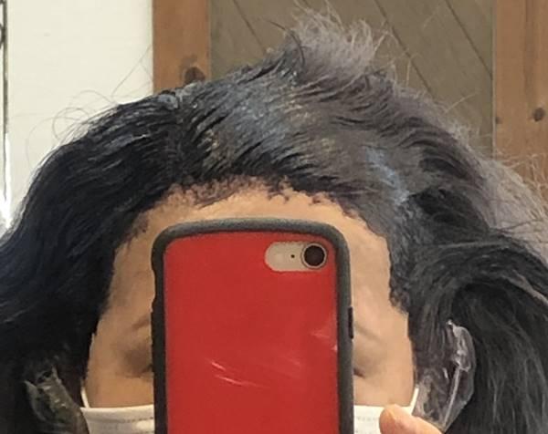 植毛部位白髪染め